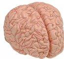 6160.01 - Mozog s tepnami